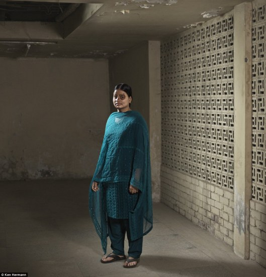 Ayesha Akter was attacked by a distant grandfather. Acid attacks were quite frequent in Bangladesh, usually due to rebuffed marriage proposals, affairs, or financial problems.