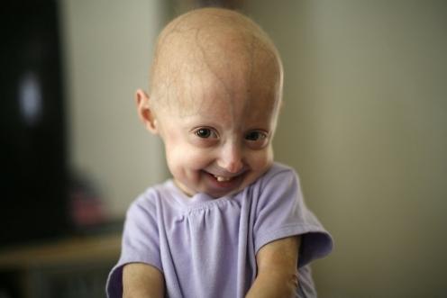 Child with progeria.